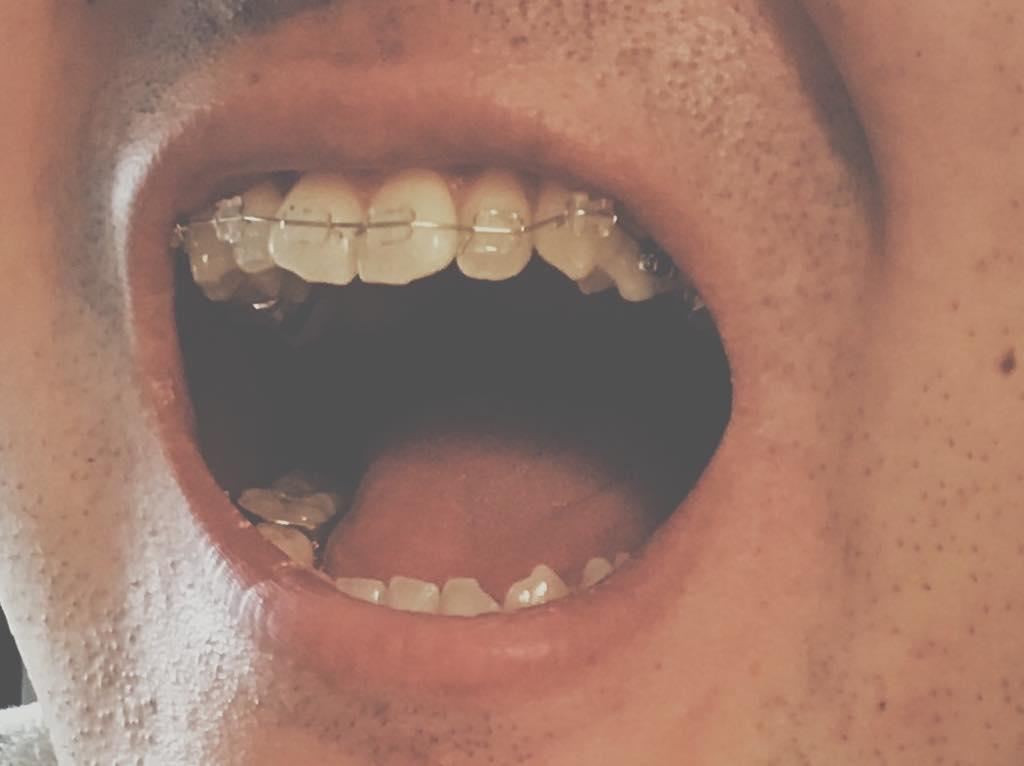 braces4-upper-brace