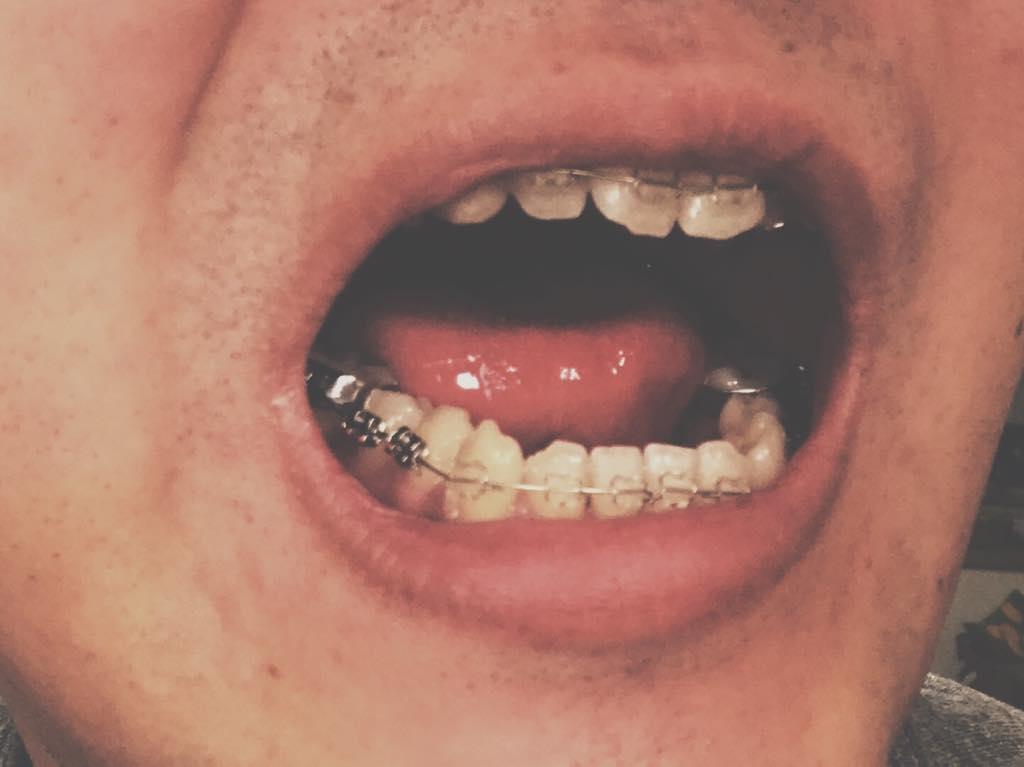 braces5-braces