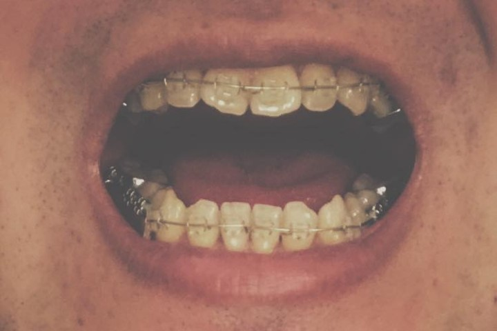 braces7-featured-image